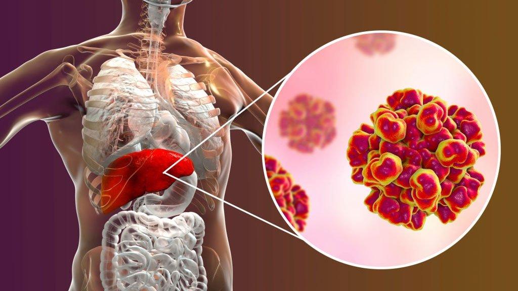 Hepatitas B. Simptomai, priežastys, eiga ir gydymas