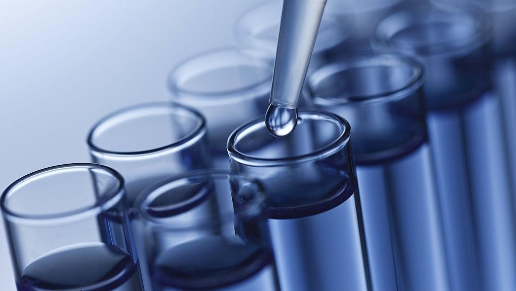 PCR ( polimeraza lančana reakcija)