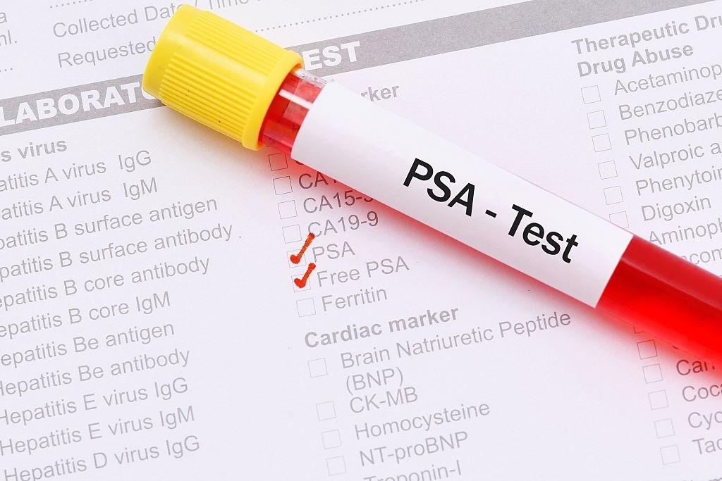 psa-test-uzorak-krvi